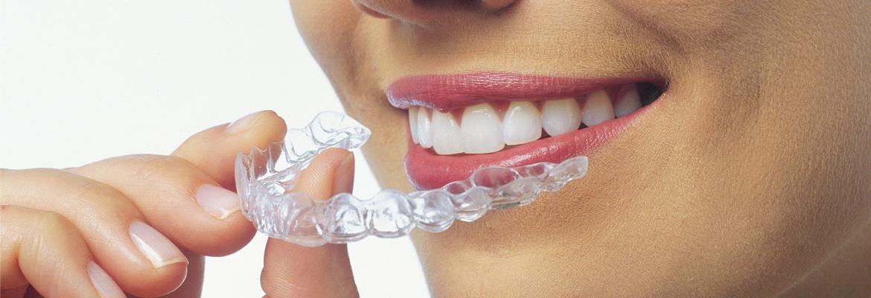 Orthodontic Braces in East London