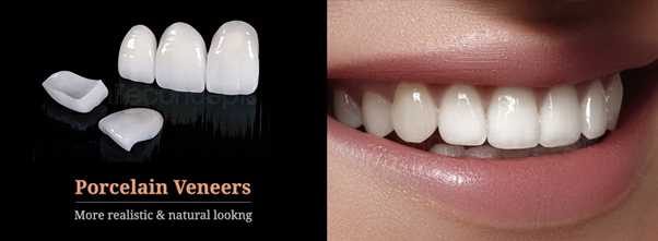 Porcelain Veneers in East London